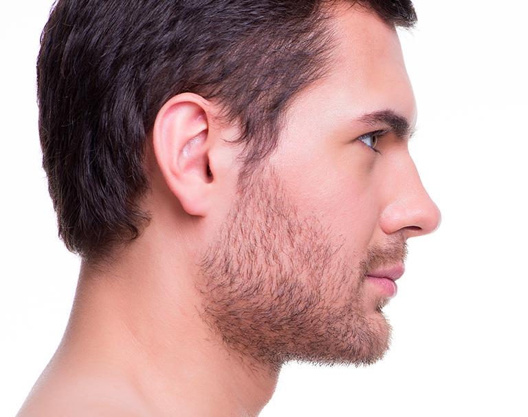 Reconstruction de l'oreille et opération des oreilles décollées