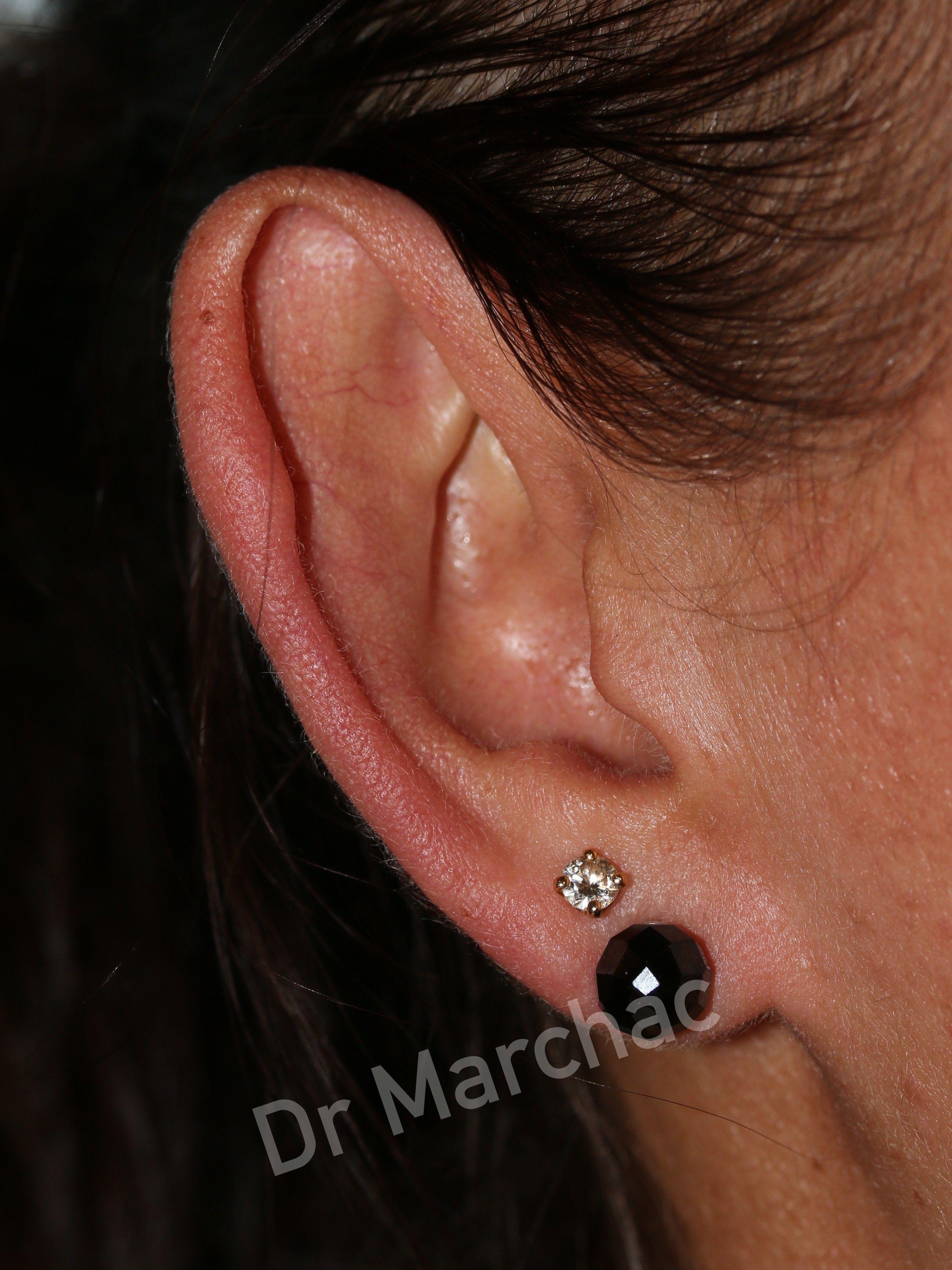 Photo avant pose d'un implant Earfold pour corriger l'oreille décollée 1