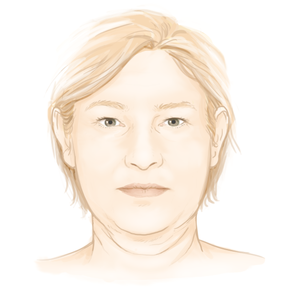 L'empâtement du visage par le Dr Marchac, chirurgien esthétique Paris 16