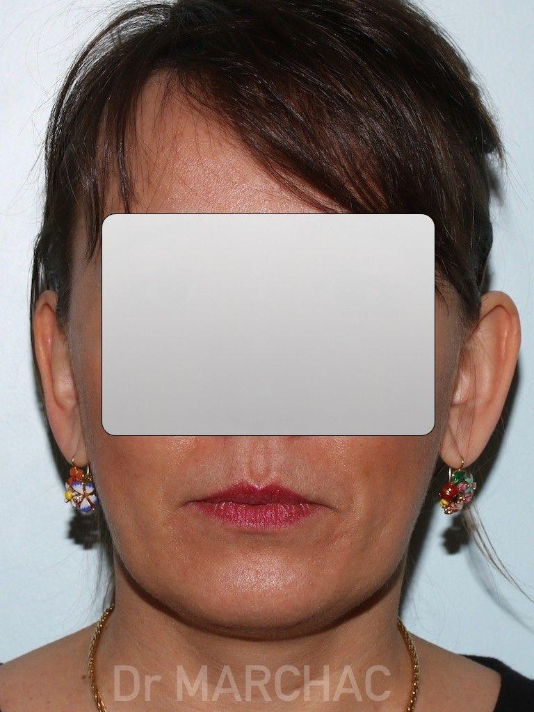Photo avant le traitement des oreilles décollées par implants Earfold