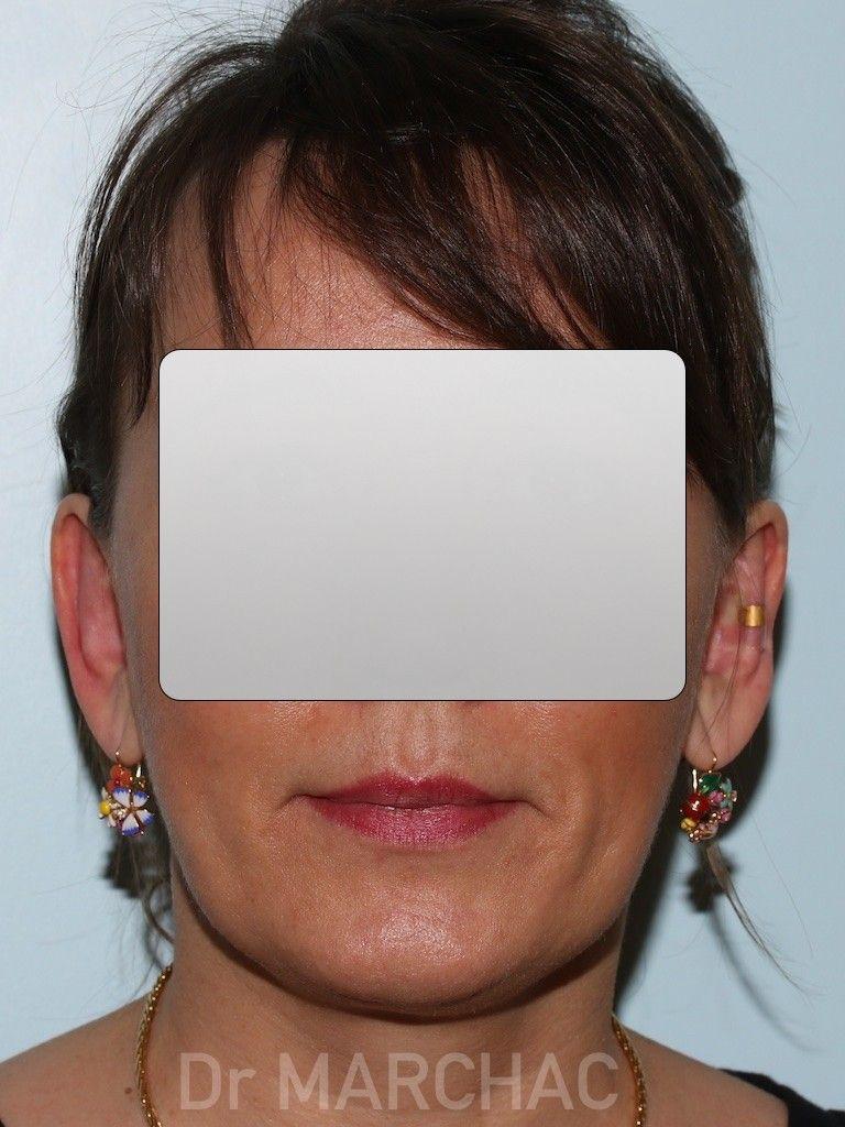 Photo après le traitement des oreilles décollées par implants Earfold