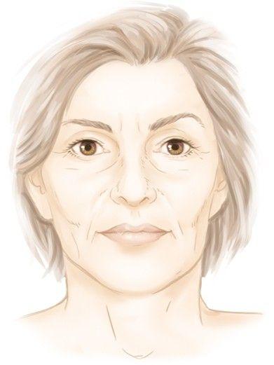 Les pertes de volume du visage par le Dr Marchac