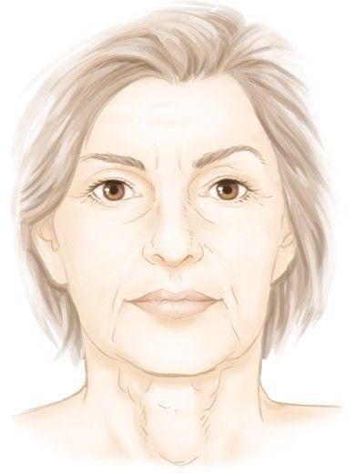 L'affaissement du visage par le Dr Marchac, chirurgien esthétique à Paris 16