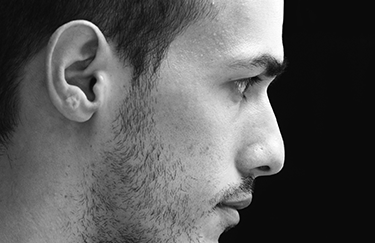 Reconstruction de l'oreille par cartilage costal chez l'homme