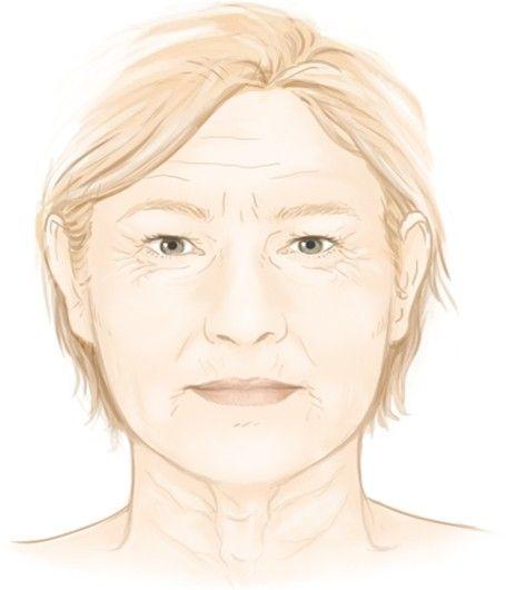 Les rides et les plis du visage par le Dr Marchac à Paris 16