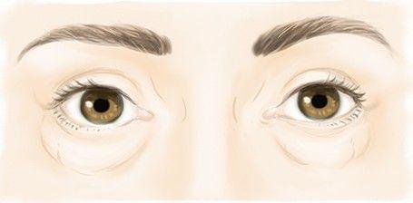 Chirurgie des poches sous les yeux - Dr Marchac, chirurgien esthétique