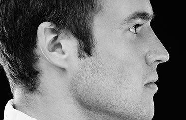 Corriger les oreilles décollées par implants Earfold pour homme - Dr Marchac Paris 16