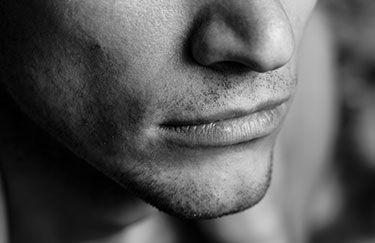 Lifting de la lèvre supérieure pour les hommes par le Dr Marchac Paris 16