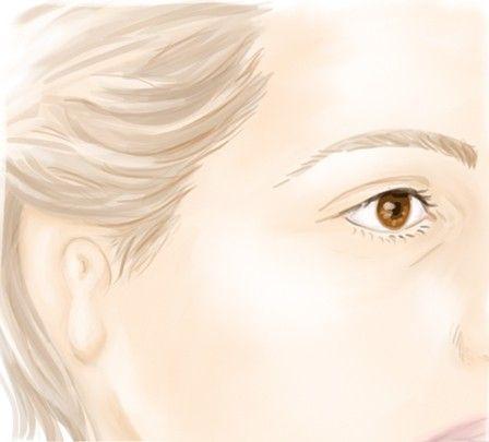 Diagnostic de la microtie et les malformations de l'oreille externe par le Dr Marchac