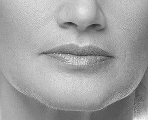 Restauration du volume des lèvres par lipofilling - Dr Marchac Paris 16
