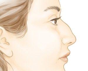 Rhinoplastie de diminution (chirurgie esthétique du nez) - Dr Marchac Paris 16
