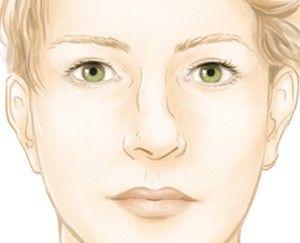 Rhinoplastie de symétrisation (chirurgie du nez) par le Dr Marchac