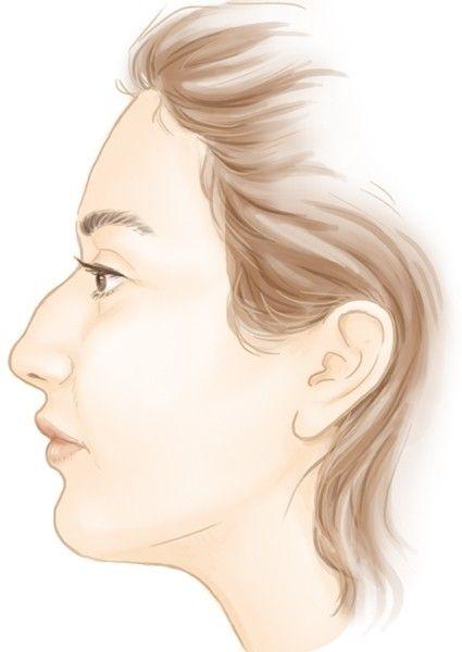 Le nez large, long et la bosse nasale par le Dr Marchac à Paris