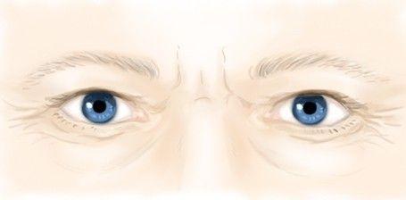 Les rides sous les yeux par le Dr Marchac, médecin esthétique