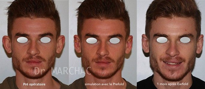 Photos avant/après otoplastie par implants Earfold par le Dr Marchac