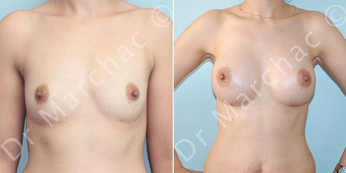 Augmentation mammaire : les photos avant/après du Dr Marchac