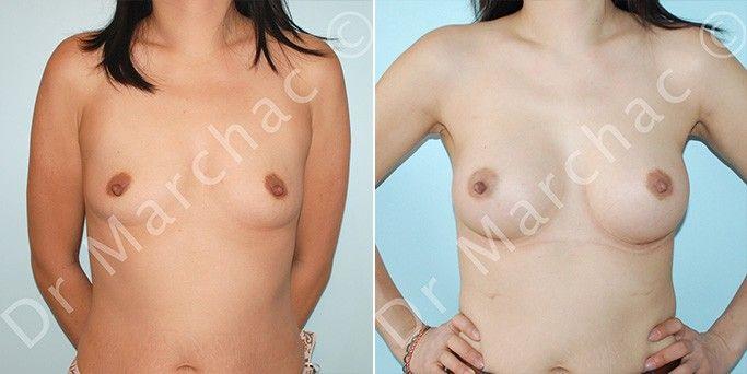 Photos avant/après opération de l'hypotrophie mammaire