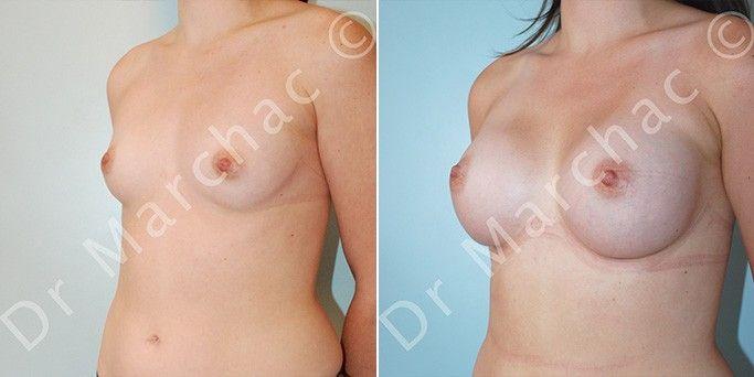 Avant/après l'augmentation mammaire par le Dr Marchac à Paris