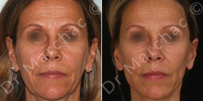 Photos Avant / Après un lifting du visage par le Dr Marchac