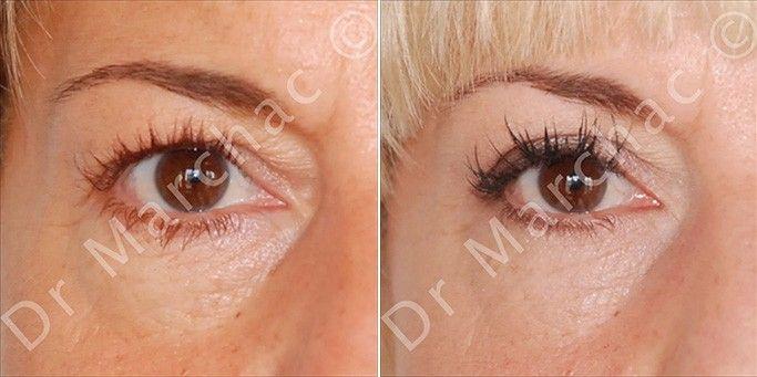 Photos avant/après opération des paupières inférieures
