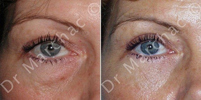 Photos avant/après chirurgie esthétique des poches sous les yeux