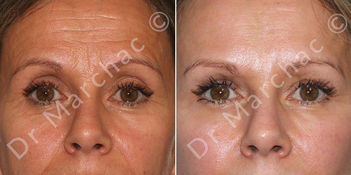 Blépharoplastie avant et après - Chirurgie esthétique à Paris