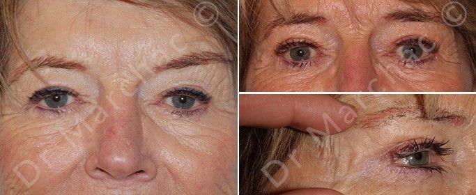 Photos avant/après chirurgie des paupières supérieures