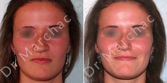 Chirurgie du nez à Paris - Avant et après l'intervention du Dr Marchac