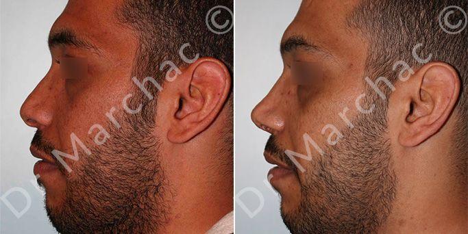 Rhinoplastie avant et après l'intervention du Dr Marchac
