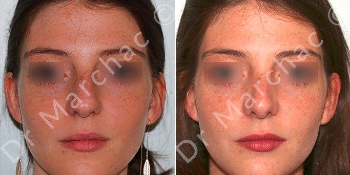 Avant et après une rhinoplastie du Dr Marchac, chirurgien esthétique à Paris