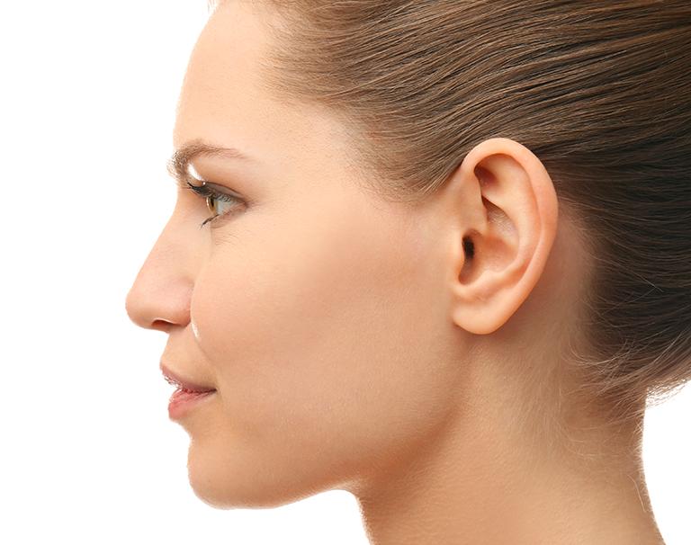 Une fois posé, l'implant Earfold est invisible sous la peau de l'oreille