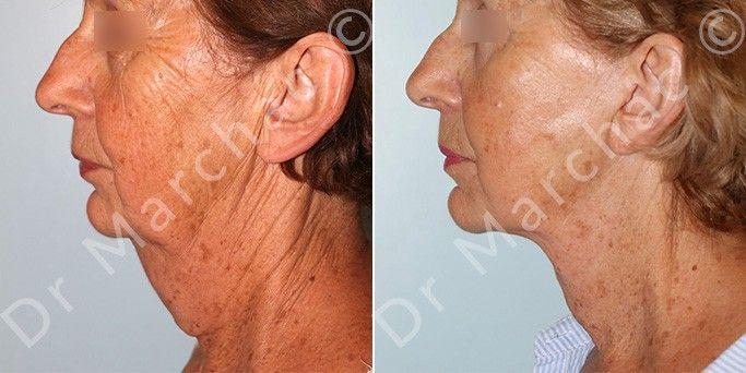 Avant/après traitement de la détente du cou par lifting du cou