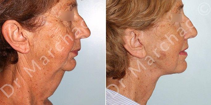 Photos avant/après le lifting de la détente du cou
