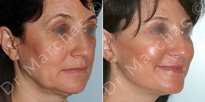 Lifting du visage - Chirurgie esthétique à Paris