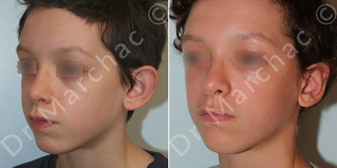 Chirurgie esthétique des oreilles décollées d'un adolescent - Dr Marchac Paris 16