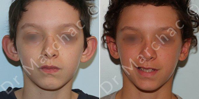 Otoplastie: oreilles décollées avant / après - Dr Marchac Paris 16