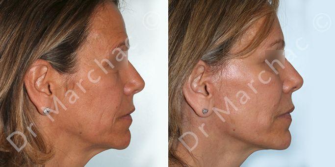 Photos avant et après d'un lifting du visage à Paris - Dr Marchac