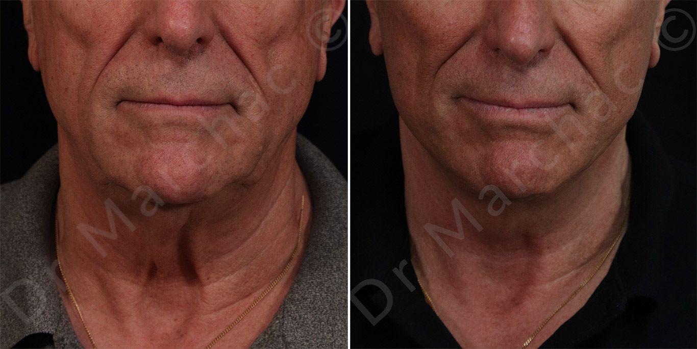 Avant/après lifting du visage et du cou à Paris | Dr Marchac