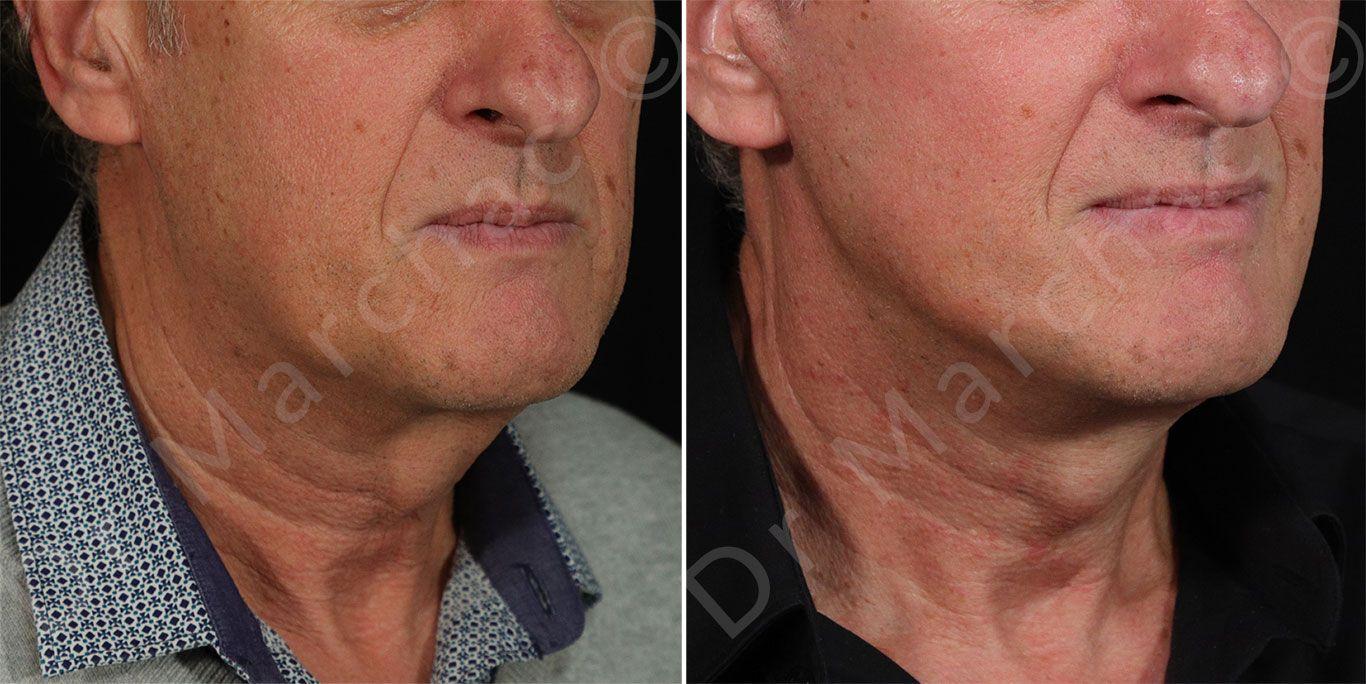 Photo avant après lifting du visage et du cou à Paris | Dr Marchac