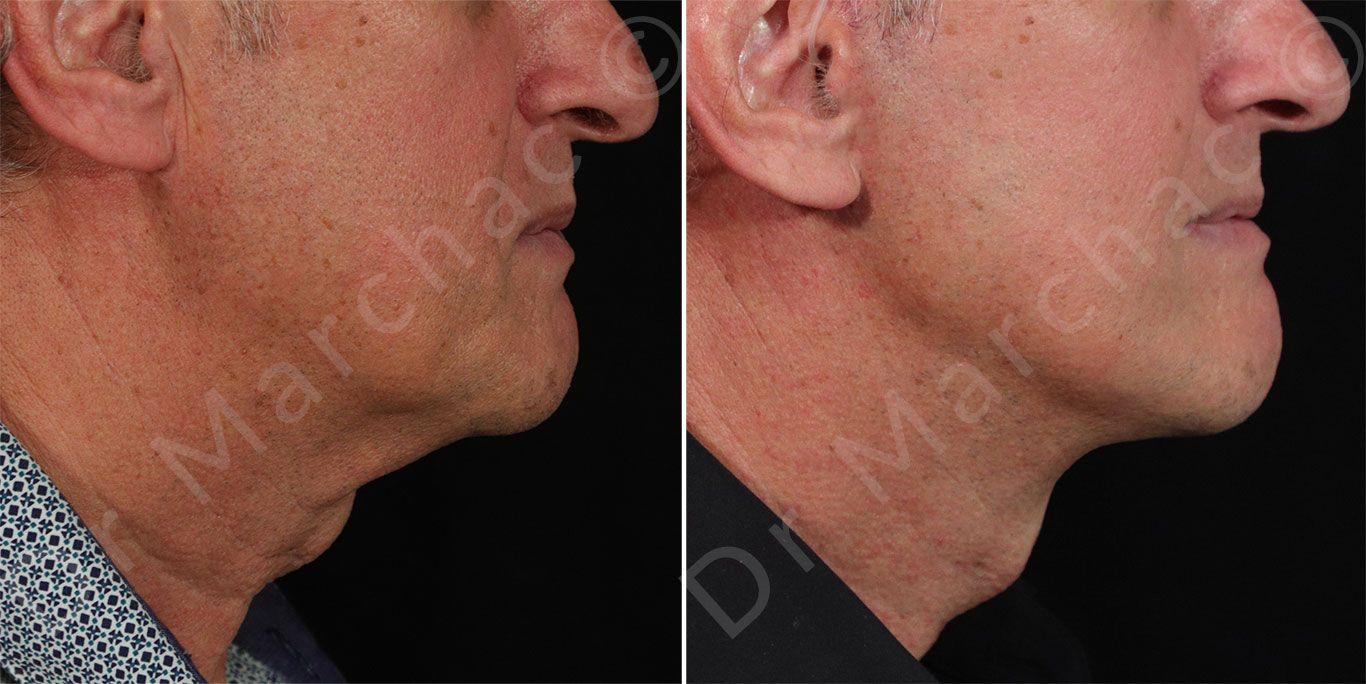 Résultat avant-après lifting visage et cou à Paris | Dr Marchac