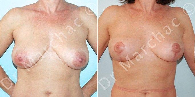 Photos avant/après correction de la ptose mammaire par mastopexie