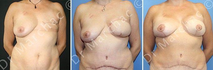 Avant/après reconstruction mammaire après mastectomie