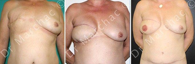 Photos avant/après reconstruction mammaire après mastectomie