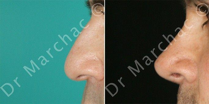 Avant/après la chirurgie esthétique du nez chez l'homme