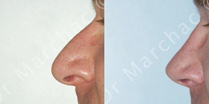 Photos avant/après la rhinoplastie chez l'homme par le Dr Marchac