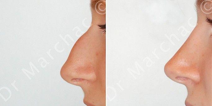 Avant/après rhinoplastie de diminution pour corriger la bosse du nez
