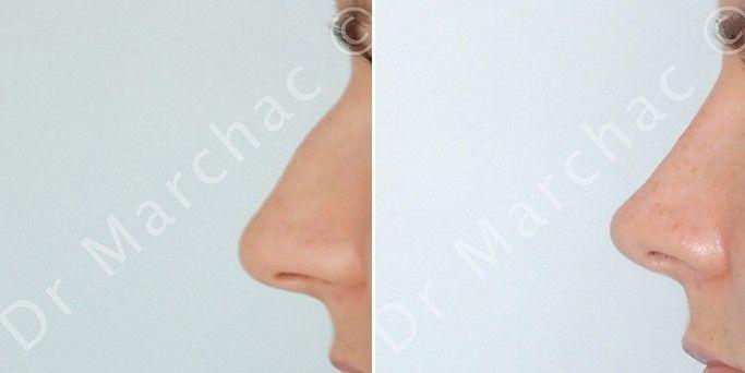 Photos avant/après diminution de la bosse du nez par le Dr Marchac