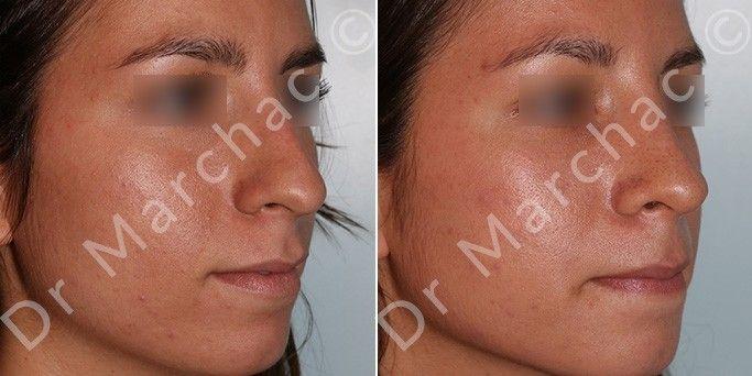 Photos avant/après chirurgie esthétique du nez par le Dr Marchac