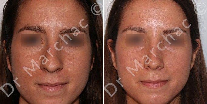 Photos avant/après de la chirurgie esthétique du nez chez la femme
