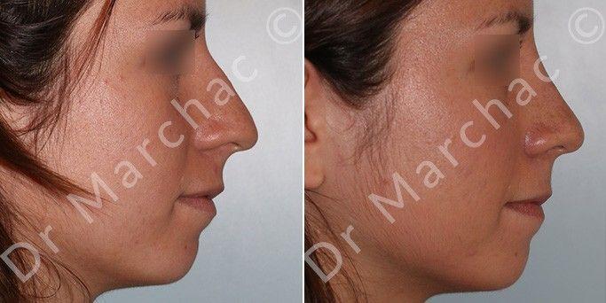 Avant/après opération esthétique de la bosse du nez par le Dr Marchac